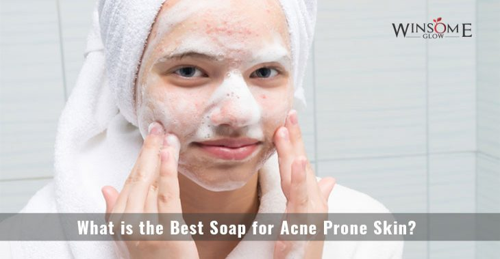 What is the Best Soap for Acne Prone Skin?